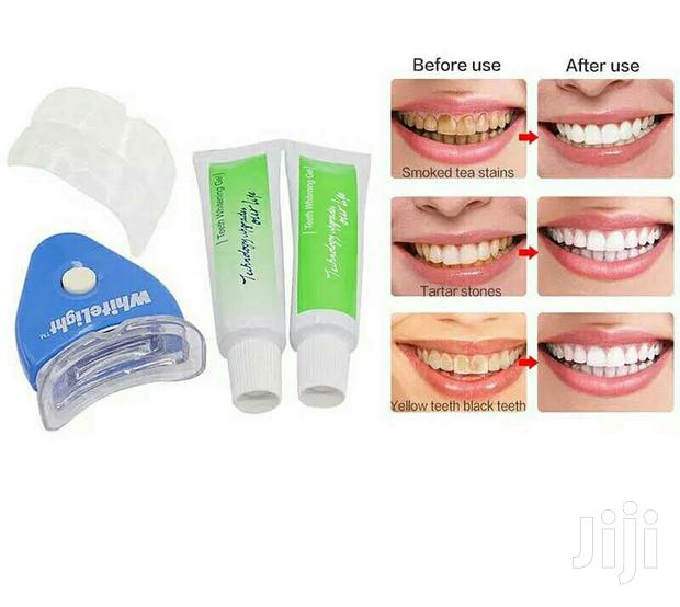 Archive: Led Light Teeth Whitening Kit